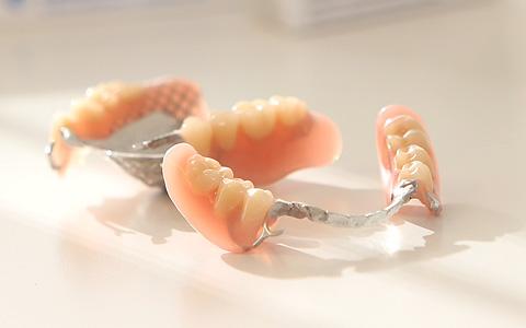 tannproteser priser